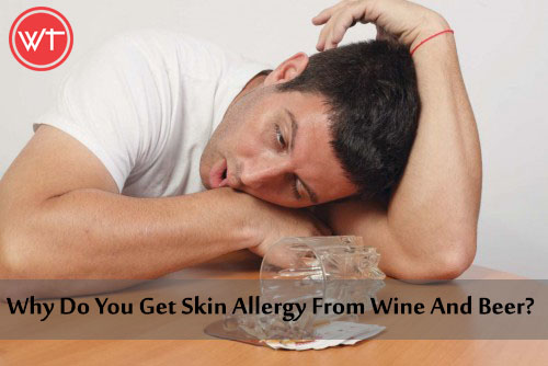 skin allergy from alcohol