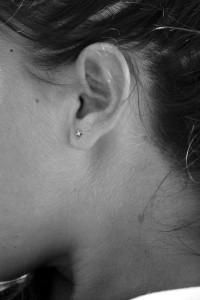 ear stapling